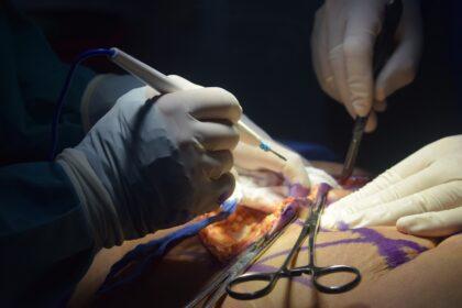 Popraw niedoskonałości - sprawdź czym jest chirurgia plastyczna